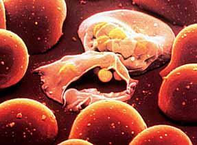 Plasmodium falciparum infecting Red Blood Cells